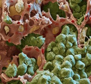 Rasterelektronenmikroskopische Aufnahme einer Lungenmetastase: Tumorzellen (grün) formen solide Tumorknoten, die in engem Kontakt mit umgebenden Kapillaren (rot) stehen. (Foto: Oliver Meckes, Eye of Science / Hellmut Augustin, DKFZ)