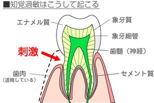 八戸 歯医者 知覚過敏 ホワイトニング