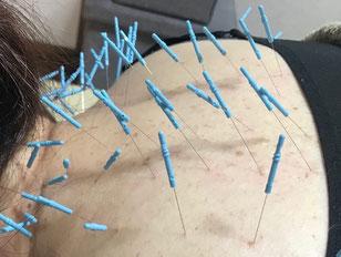 小牧 鍼灸 はりきゅう はり治療 美容鍼 腰痛 肩こり 頭痛 自律神経