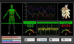 les éléments d'analyse du mini analyseur quantique