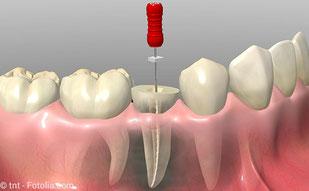 Mit einer Wurzelkanalbehandlung eigene Zähne retten und Geld sparen