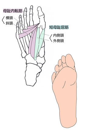 外反母趾によって足の筋肉が緊張します