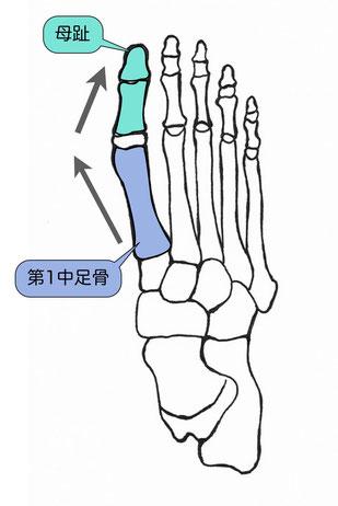 第1中足骨の内反と母趾の外反が起こります