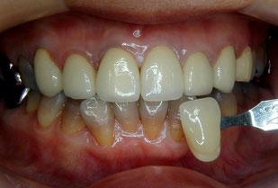 登戸・向ヶ丘遊園にあるカワシマ歯科医院 差し歯