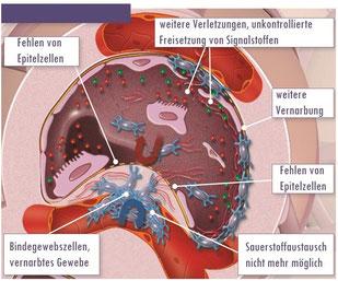 fibrosierender Reparaturmechanism. (Quelle Intermune)