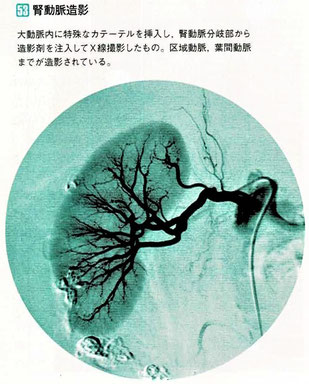 腎動脈造影