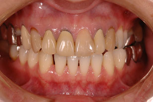 変色した歯