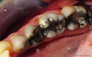Amalgam-Füllungen: Nicht schön und in gesundheitlicher Hinsicht umstritten