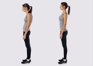 What is sway back posture?