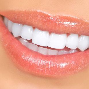 Bleaching, Zahnaufhellung, weiße Zähne, Veneers, weiße Füllungen, Keramik (© Kurhan - Fotolia.com)