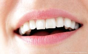 Natürlich schöner Zahnersatz