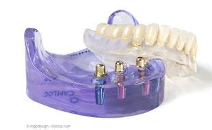 Totalprothesen können mit nur wenigen Implantaten einen festen Halt bekommen..