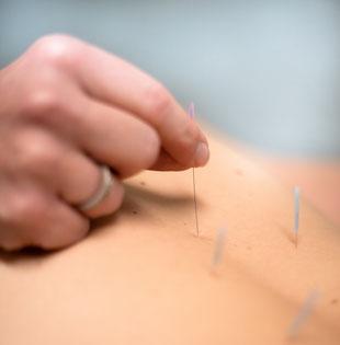 Akupunktur Wandlitz, Bernau, Oranienburg, Eberswalde