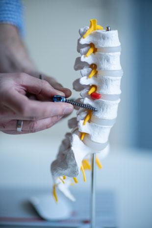 Wirbelsäulentherapie bei Rückenschmerzen