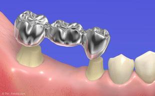 Für eine Brücke müssten oft gesunde Zähne abgeschliffen werden. Mit Implantaten kann man das vermeiden.
