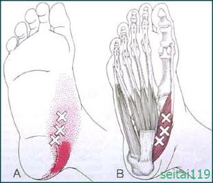 母趾外転筋が原因で外反母趾の発症も
