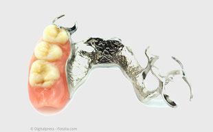 Mit Implantaten können sog. Teilprothesen oft vermieden werden.