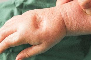 Leistung des MVZ Praxis Dr. Cornely Düsseldorf: Lymphologie