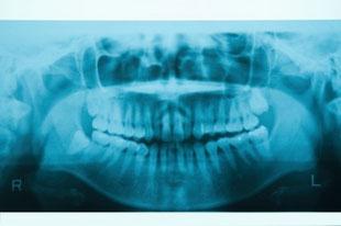 Zahn Röntgenbild Karies