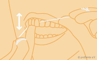 zahnzwischenr ume reinigen zahnarzt taucha leipzig. Black Bedroom Furniture Sets. Home Design Ideas