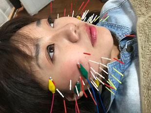 小牧 鍼治療 鍼灸 腰痛 頭痛 自律神経 美容鍼
