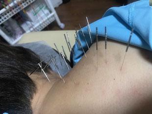 小牧 鍼灸 はり 治療 腰痛 坐骨神経痛 自律神経 頭痛 めまい 過敏性腸症候群 下痢 便秘 食欲不振