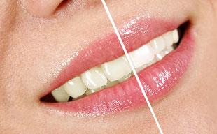 Wie viel weißer werden die Zähne durch Bleaching?