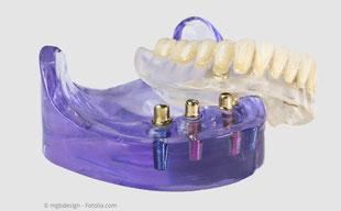 Mit Implantaten kann der Halt von schlecht sitzenden Prothesen erheblich verbessert werden.