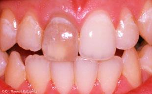Auch einzelne dunkle Zähne können vom Zahnarzt aufgehellt werden.