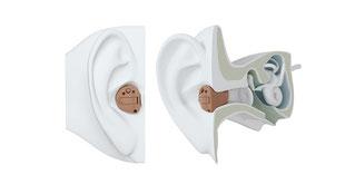 耳穴型補聴器の画像