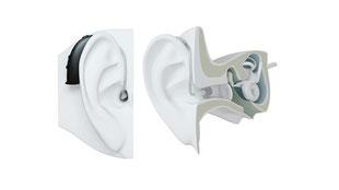耳掛け方補聴器の画像