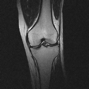 MRI画像:膝関節のT2強調画像