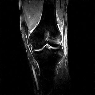 MRI画像:膝関節のSTIR