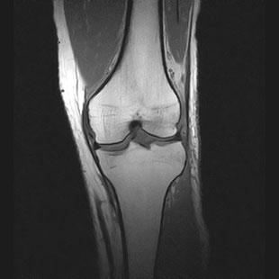 MRI画像:膝関節のT1強調画像