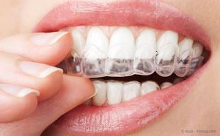 Zahnregulierung, die für andere kaum zu sehen ist.
