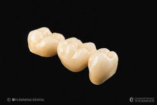 Dr. Thomas Steinmeier Zahnarztpraxis Zahnersatz Zahnheilkunde OWL Zahnimplantologie