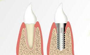 Implantate: Festsitzender Zahnersatz wie auf eigenen Zähnen