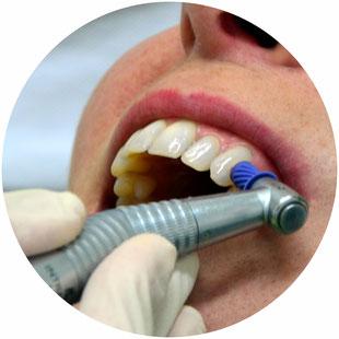 Prophylaxe und Zahnreinigung