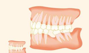 Zahnwanderung bei unversorgter Zahnlücke