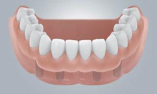 Zahnprothese auf Implantaten - Zahnarzt Erhard Hauzenberg