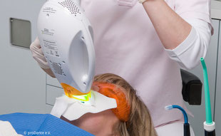 Weiße Zähne in einem Termin