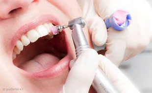 Eine der besten Vorbeugemaßnahmen gegen Mundgeruch: Regelmäßige professionelle Zahnreinigung (PZR)!