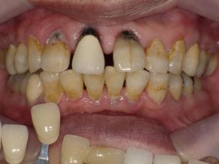 むし歯、歯の移動
