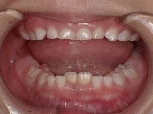 乳歯を抜歯する予定