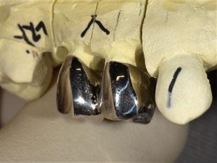 銀歯 クラウン