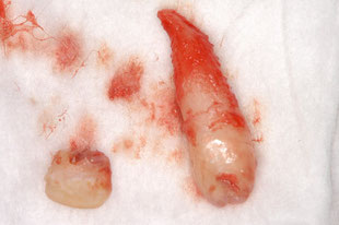 抜歯後の過剰歯