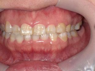 白い歯 メタルボンドクラウン