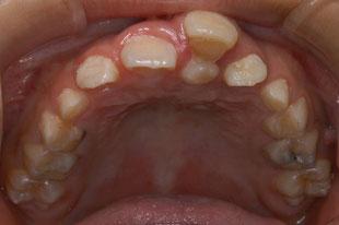 左上の前歯の過剰歯