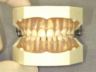 プレオルソこども歯ならび矯正法