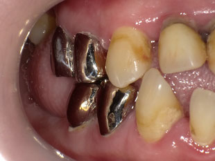銀歯クラウン